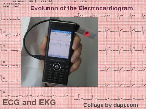 electrocardiogram-ecg-ekg